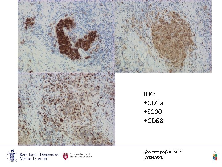 IHC: • CD 1 a • S 100 • CD 68 (courtesy of Dr.