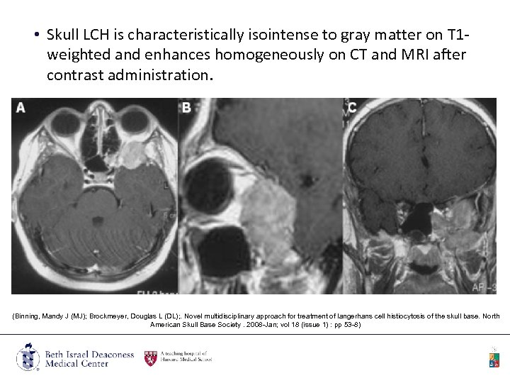 • Skull LCH is characteristically isointense to gray matter on T 1 weighted