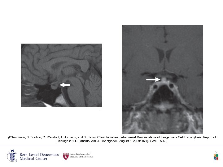 (D'Ambrosio, S. Soohoo, C. Warshall, A. Johnson, and S. Karimi Craniofacial and Intracranial Manifestations
