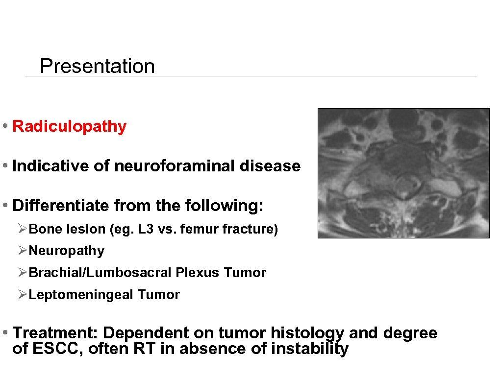 Presentation • Radiculopathy • Indicative of neuroforaminal disease • Differentiate from the following: ØBone