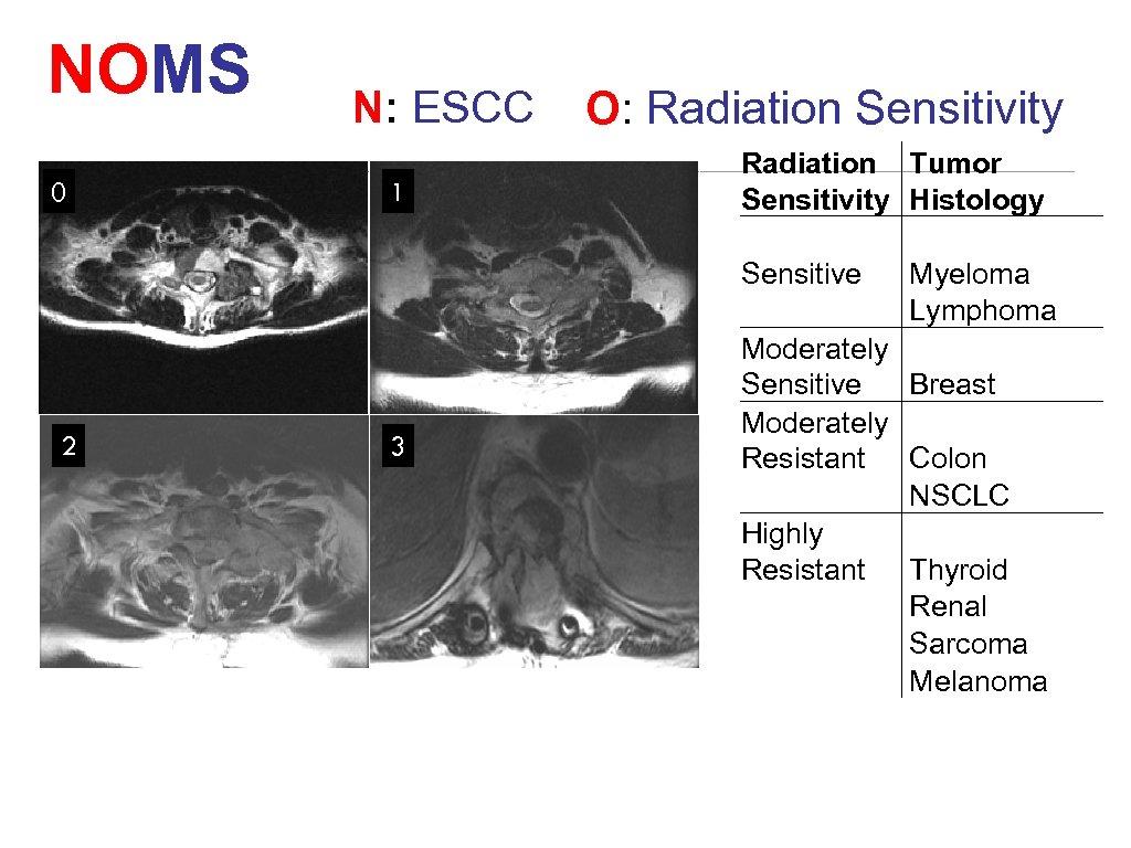 NOMS N: ESCC 0 2 1 3 O: Radiation Sensitivity Radiation Tumor Sensitivity Histology