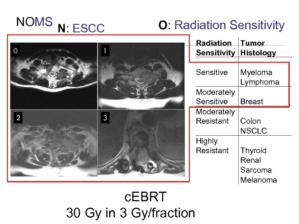 NOMS N: ESCC 0 2 O: Radiation Sensitivity 1 3 c. EBRT 30 Gy