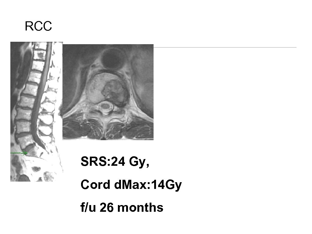 RCC SRS: 24 Gy, Cord d. Max: 14 Gy f/u in 26 Treatment of