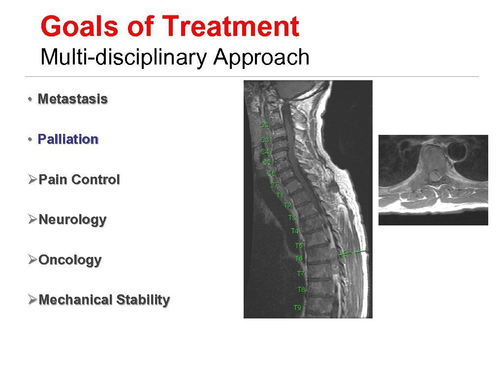 Goals of Treatment Multi-disciplinary Approach • Metastasis • Palliation ØPain Control ØNeurology ØOncology ØMechanical