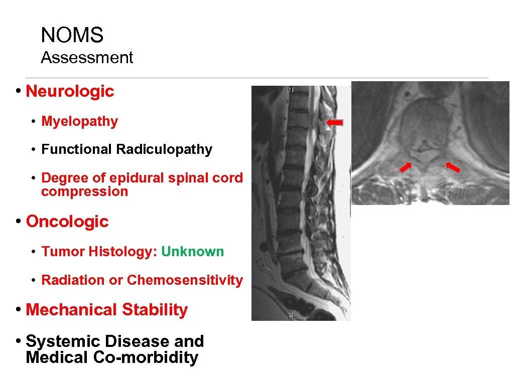 NOMS Assessment • Neurologic • Myelopathy • Functional Radiculopathy • Degree of epidural spinal