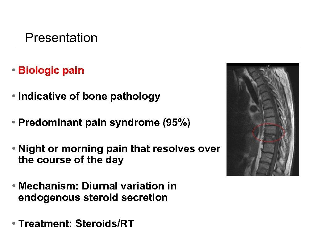 Presentation • Biologic pain • Indicative of bone pathology • Predominant pain syndrome (95%)