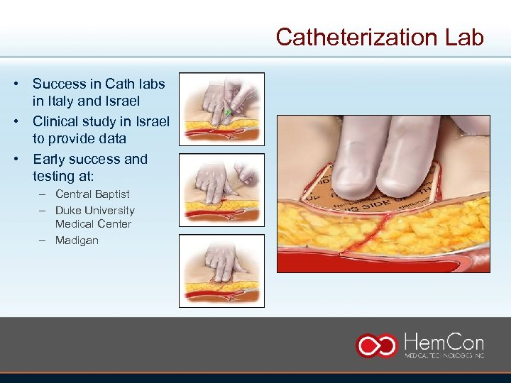 Catheterization Lab • Success in Cath labs in Italy and Israel • Clinical study