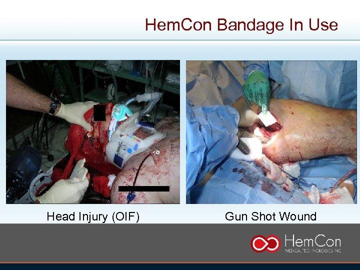 Hem. Con Bandage In Use Head Injury (OIF) Gun Shot Wound