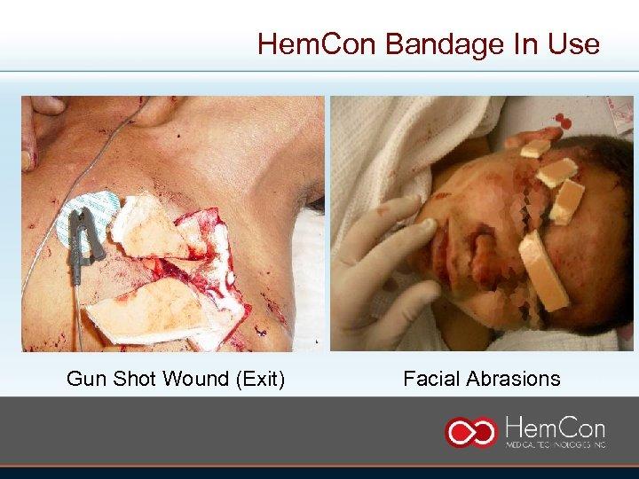 Hem. Con Bandage In Use Gun Shot Wound (Exit) Facial Abrasions