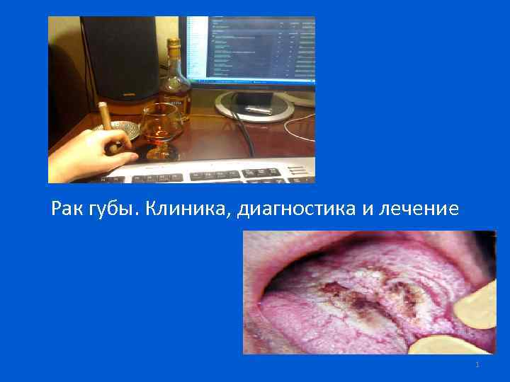 Рак губы. Клиника, диагностика и лечение 1