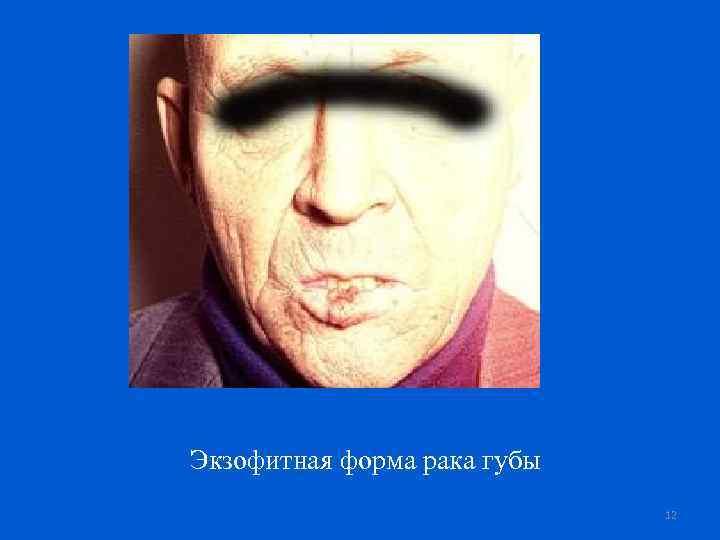 Экзофитная форма рака губы 12