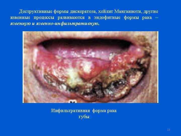 Деструктивные формы дискератоза, хейлит Манганноти, другие язвенные процессы развиваются в эндофитные формы рака –