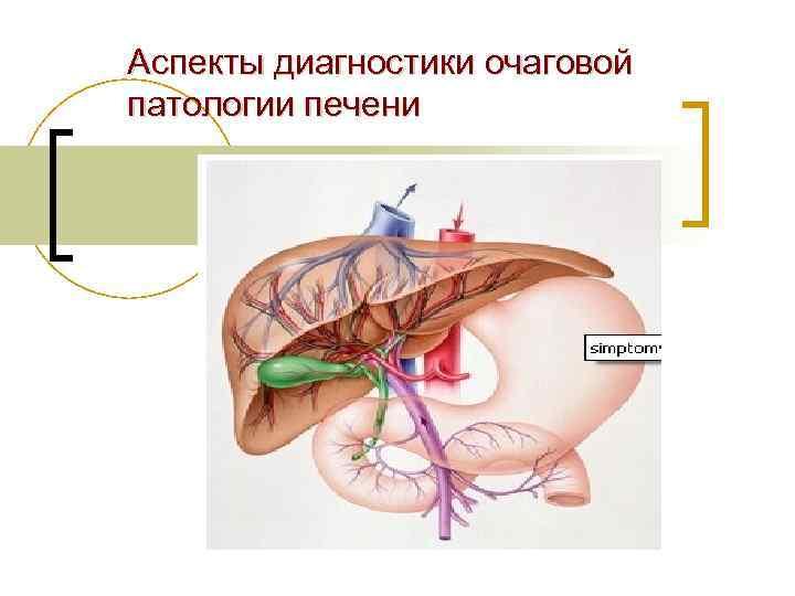 Аспекты диагностики очаговой патологии печени