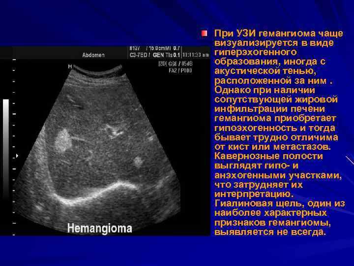 При УЗИ гемангиома чаще визуализируется в виде гиперэхогенного образования, иногда с акустической тенью, расположенной