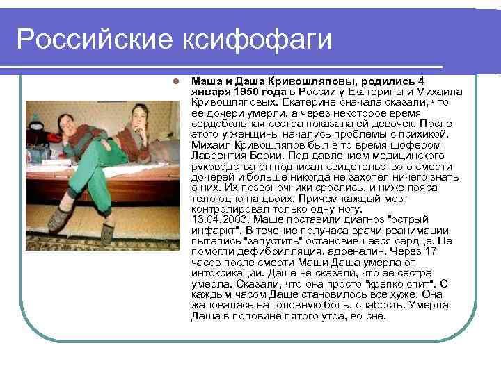 Российские ксифофаги l Маша и Даша Кривошляповы, родились 4 января 1950 года в России
