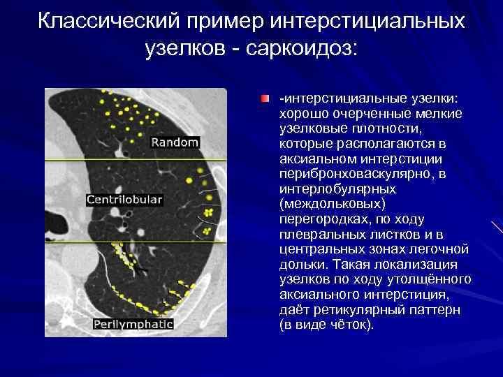 Классический пример интерстициальных узелков - саркоидоз: -интерстициальные узелки: хорошо очерченные мелкие узелковые плотности, которые