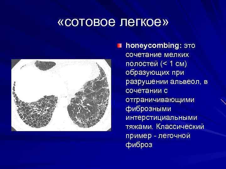 «сотовое легкое» honeycombing: это сочетание мелких полостей (< 1 см) образующих при разрушении