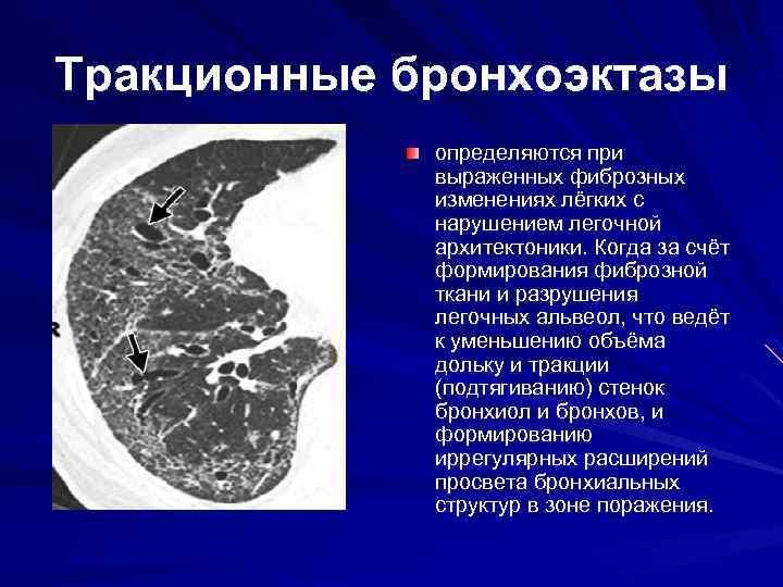 Tракционные бронхоэктазы определяются при выраженных фиброзных изменениях лёгких с нарушением легочной архитектоники. Когда за