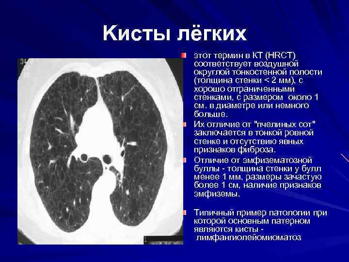Kисты лёгких этот термин в КТ (HRCT) соответствует воздушной округлой тонкостенной полости (толщина стенки