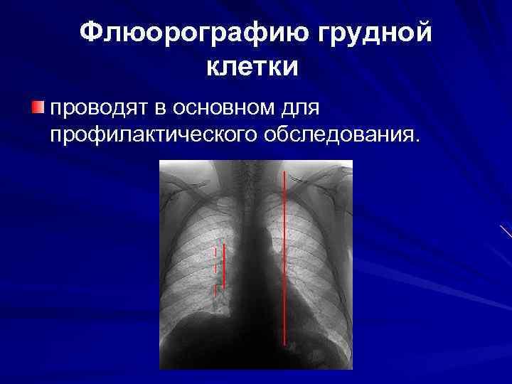 Флюорографию грудной клетки проводят в основном для профилактического обследования.