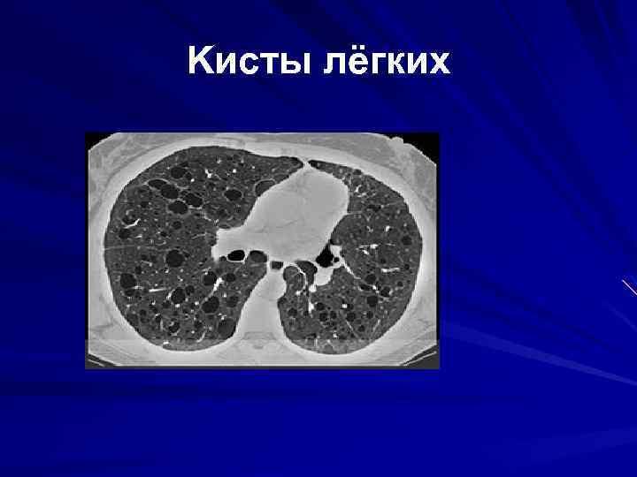 Kисты лёгких