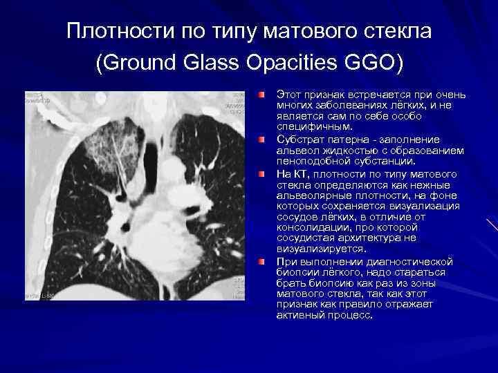 Плотности по типу матового стекла (Ground Glass Opacities GGO) Этот признак встречается при очень