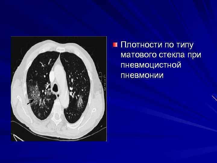 Плотности по типу матового стекла при пневмоцистной пневмонии