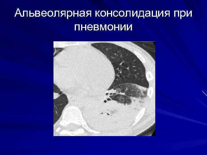 Альвеолярная консолидация при пневмонии