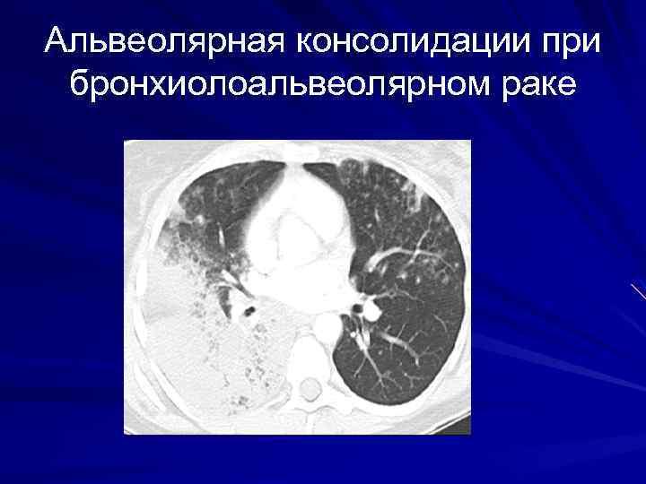 Альвеолярная консолидации при бронхиолоальвеолярном раке