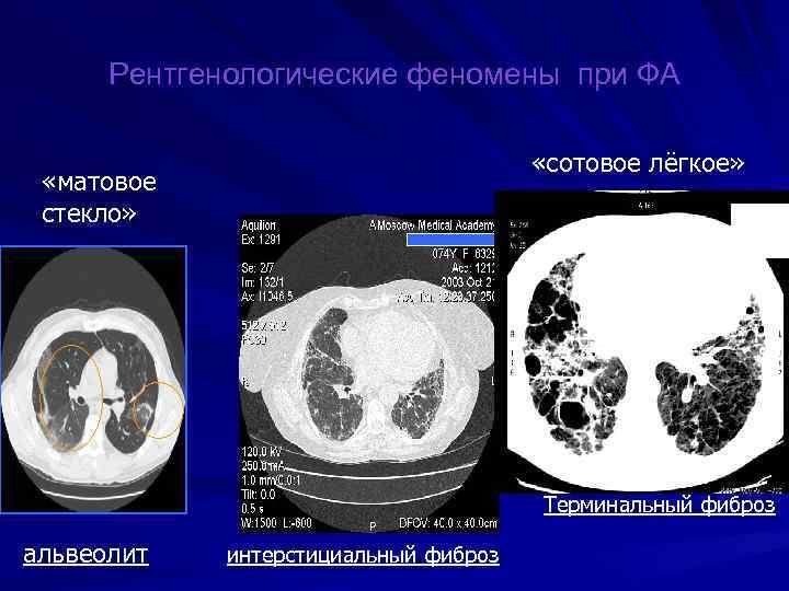 Рентгенологические феномены при ФА «сотовое лёгкое» «матовое стекло» Терминальный фиброз альвеолит интерстициальный фиброз