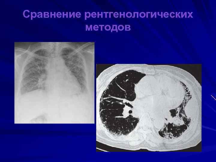 Сравнение рентгенологических методов