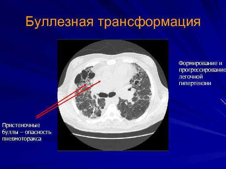 Буллезная трансформация Формирование и прогрессирование легочной гипертензии Пристеночные буллы – опасность пневмоторакса