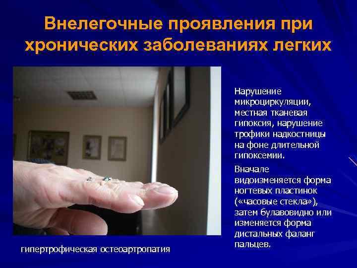 Внелегочные проявления при хронических заболеваниях легких Нарушение микроциркуляции, местная тканевая гипоксия, нарушение трофики надкостницы