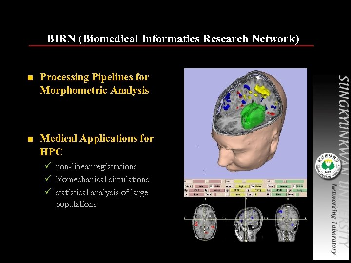BIRN (Biomedical Informatics Research Network) ■ Processing Pipelines for Morphometric Analysis ■ Medical Applications