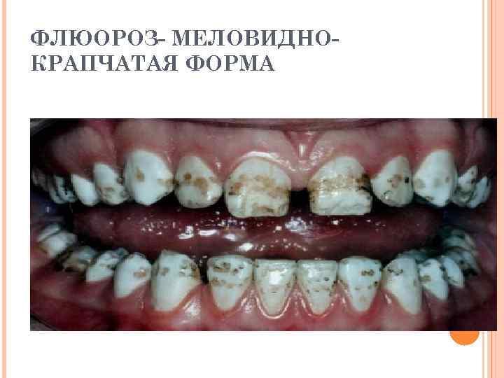 ФЛЮОРОЗ- МЕЛОВИДНОКРАПЧАТАЯ ФОРМА