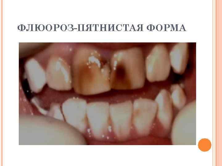 ФЛЮОРОЗ-ПЯТНИСТАЯ ФОРМА