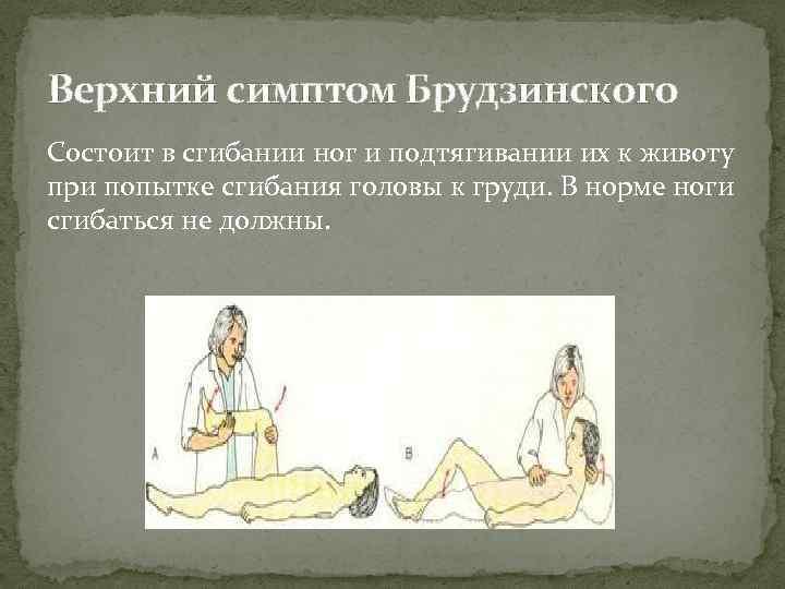 Верхний симптом Брудзинского Состоит в сгибании ног и подтягивании их к животу при попытке