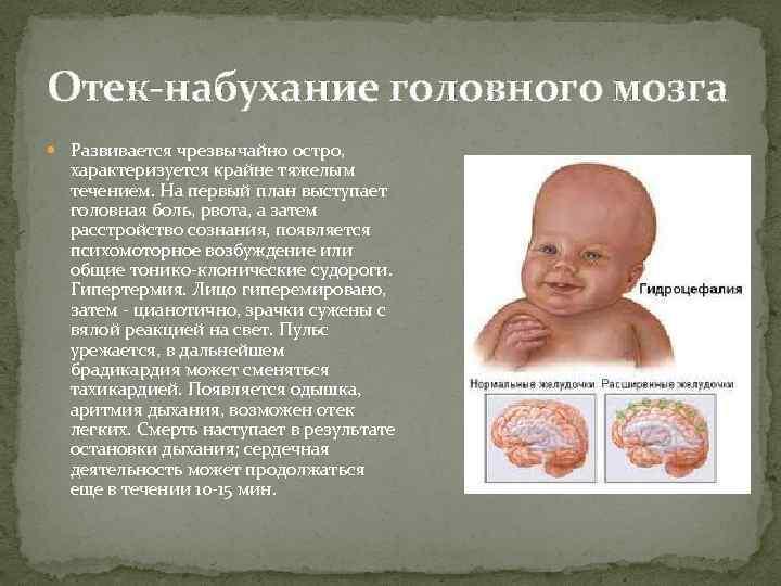 Отек-набухание головного мозга Развивается чрезвычайно остро, характеризуется крайне тяжелым течением. На первый план выступает
