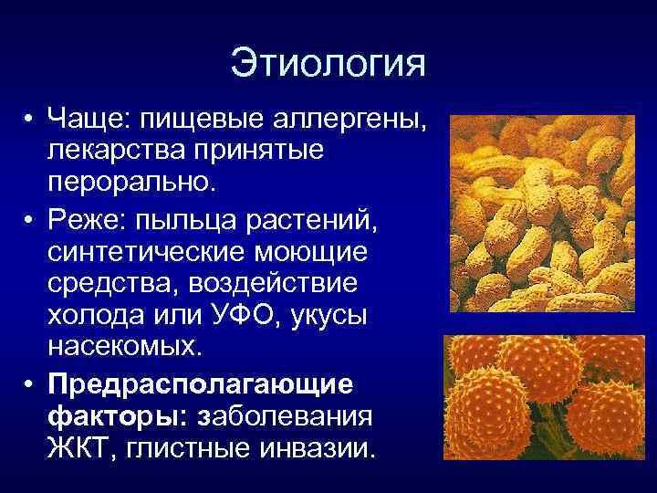 Этиология • Чаще: пищевые аллергены, лекарства принятые перорально. • Реже: пыльца растений, синтетические моющие