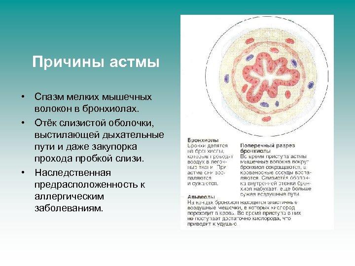 Причины астмы • Спазм мелких мышечных волокон в бронхиолах. • Отёк слизистой оболочки, выстилающей