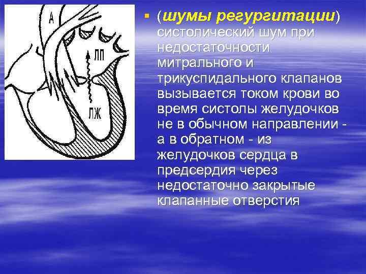 § (шумы регургитации) систолический шум при недостаточности митрального и трикуспидального клапанов вызывается током крови