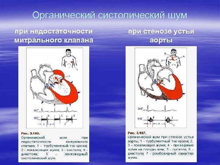 Органический систолический шум при недостаточности митрального клапана при стенозе устья аорты