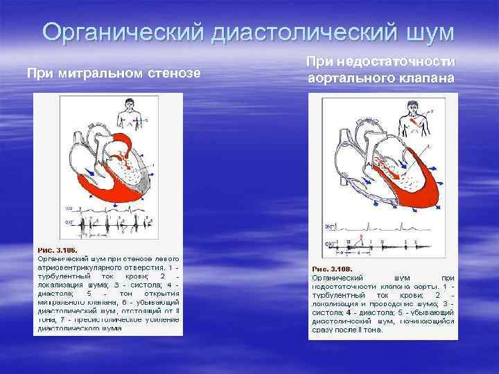 Органический диастолический шум При митральном стенозе При недостаточности аортального клапана