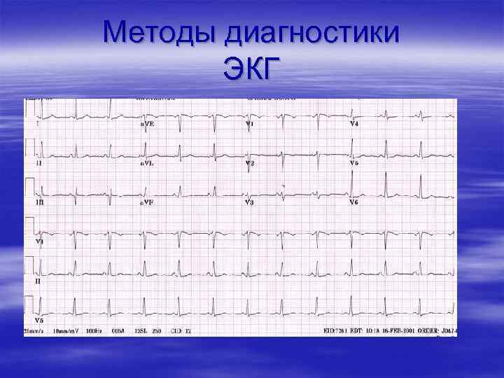 Методы диагностики ЭКГ