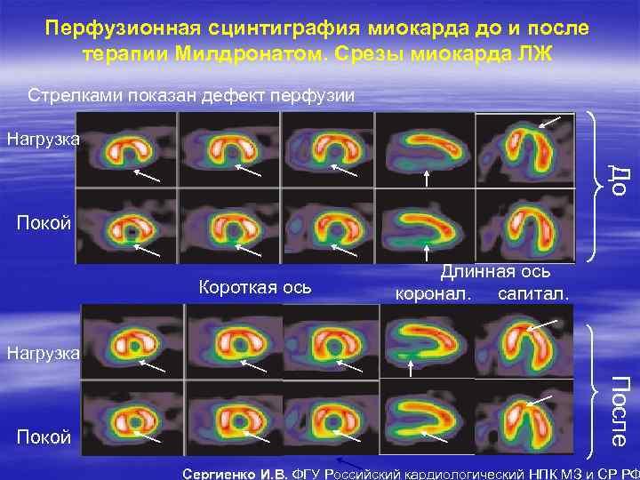 Перфузионная сцинтиграфия миокарда до и после терапии Милдронатом. Срезы миокарда ЛЖ Стрелками показан дефект