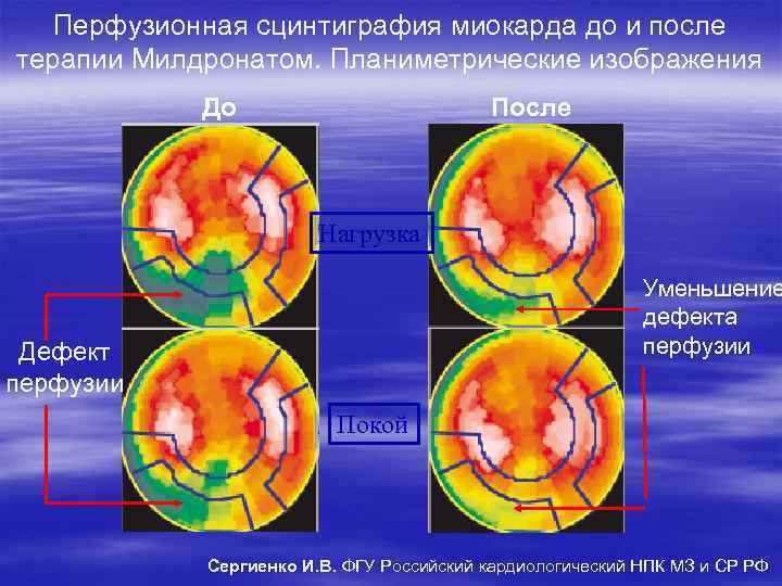 Перфузионная сцинтиграфия миокарда до и после терапии Милдронатом. Планиметрические изображения До После Нагрузка Уменьшение