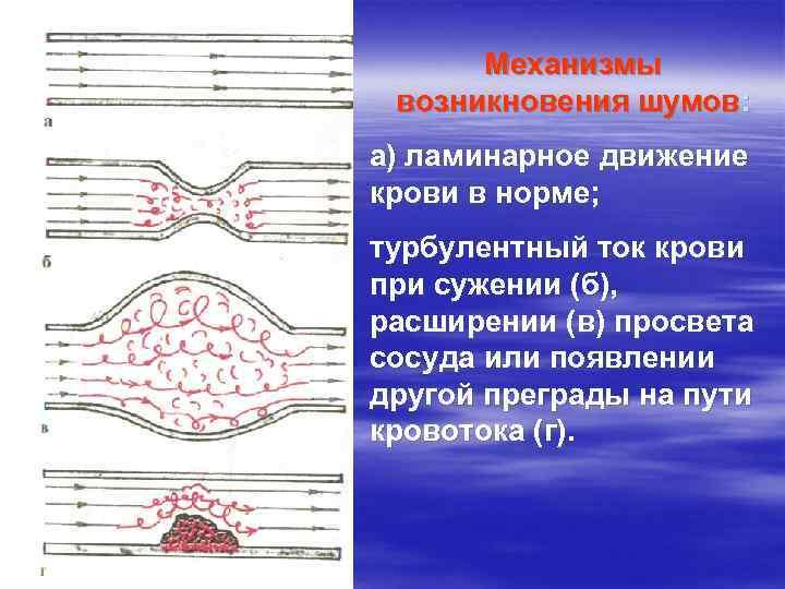 Механизмы возникновения шумов: а) ламинарное движение крови в норме; турбулентный ток крови при сужении