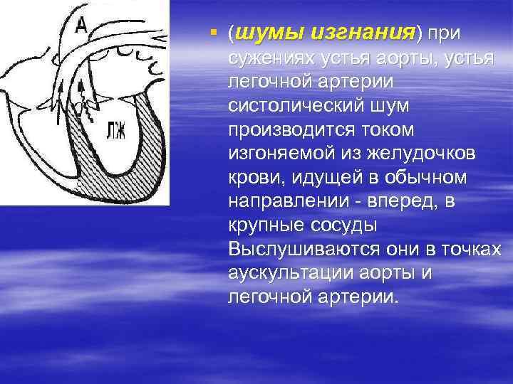 § (шумы изгнания) при сужениях устья аорты, устья легочной артерии систолический шум производится током