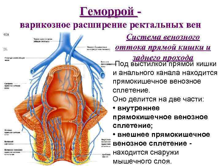 Геморрой варикозное расширение ректальных вен Система венозного оттока прямой кишки и заднего прохода Под