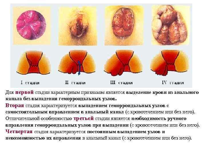 Для первой стадии характерным признаком является выделение крови из анального канала без выпадения геморроидальных
